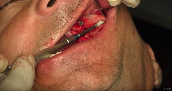implantologia bologna zigomatico