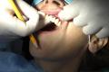 Implantologia carico immediato senza gengiva Bologna