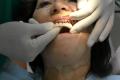 Implantologia a carico immediato senza osso Bologna