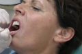 Implantologia fissa senza osso Bologna
