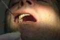 Implantologia dentale a carico immediato senza finta gengiva con osso o senza