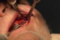 Implantologia poco osso denti fissi Zigomatico Pterigoideo Bologna