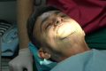 Implantologia fissa poco osso - Impianti senza osso Bologna Prezzi