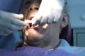 Impianti dentali a carico immediato Bologna
