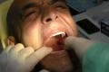 Implantologia Bologna -Impianti dentali Bologna - All on 4 Bologna