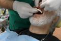 Implantologia dentale Bologna Prezzi € 7.800 arcata