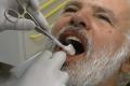 Implantologia Bologna a carico immediato senza finta gengiva